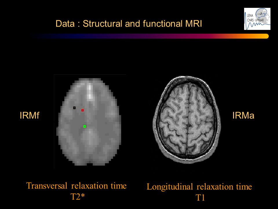 Data : Structural and functional MRI