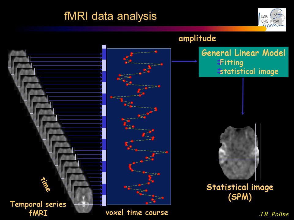 fMRI data analysis amplitude General Linear Model Statistical image