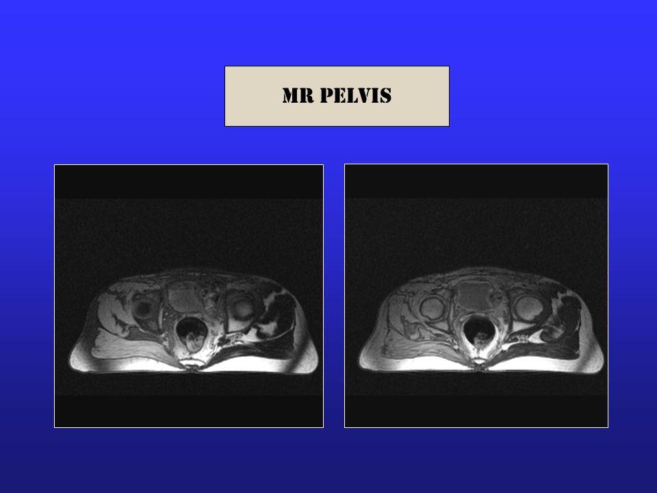 MR Pelvis