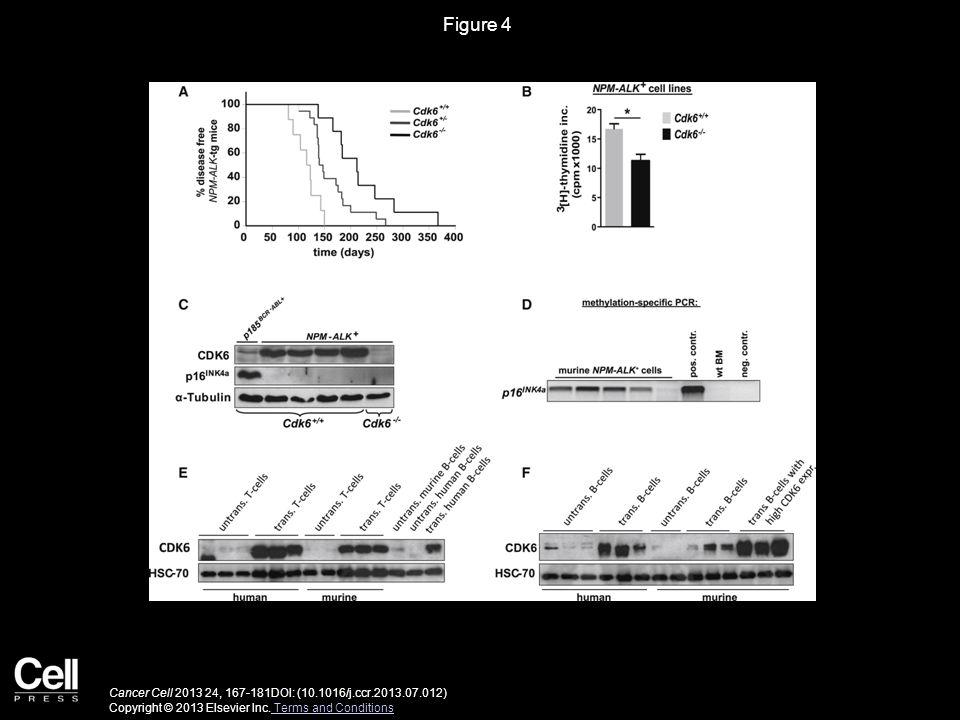 Figure 4 CDK6 Regulates NPM-ALK-Induced Disease Progression