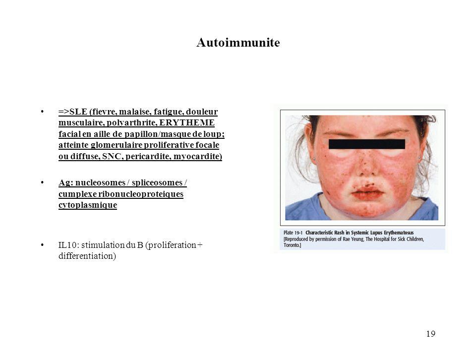 Autoimmunite