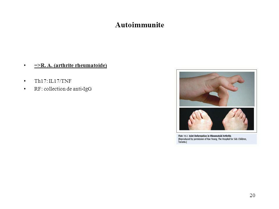 Autoimmunite =>R. A. (arthrite rheumatoide) Th17: IL17/TNF