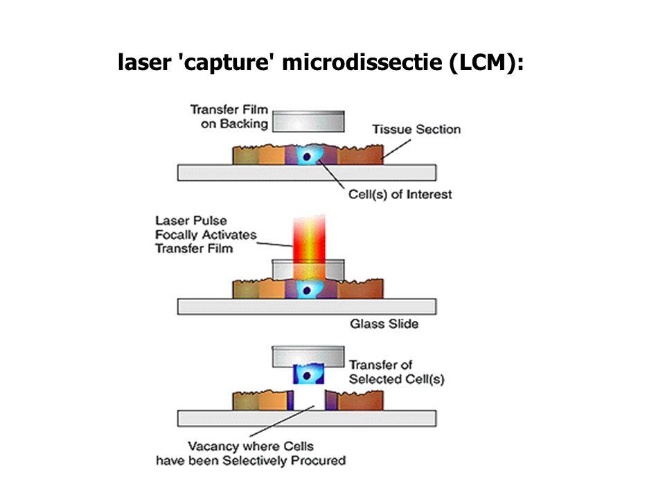 laser capture microdissectie (LCM):