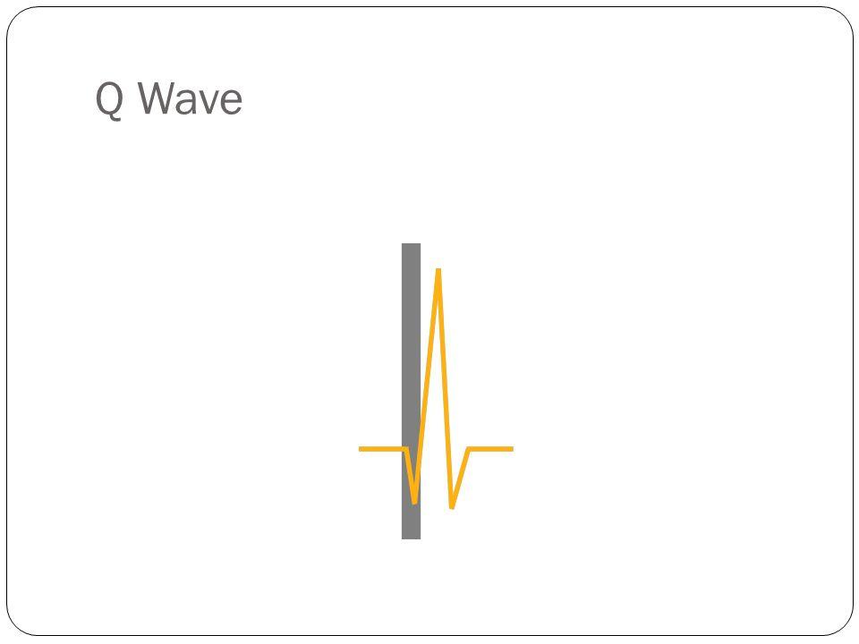 Q Wave Q Wave: A negative deflection preceding the R wave.