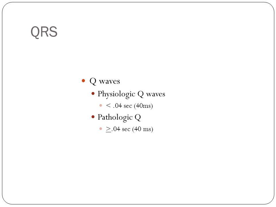 QRS Q waves Physiologic Q waves Pathologic Q < .04 sec (40ms)