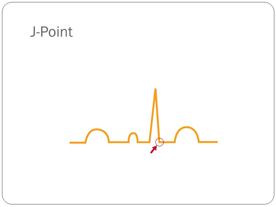 J-Point J-Point: The junction between the end of the QRS and the beginning of the ST segment.