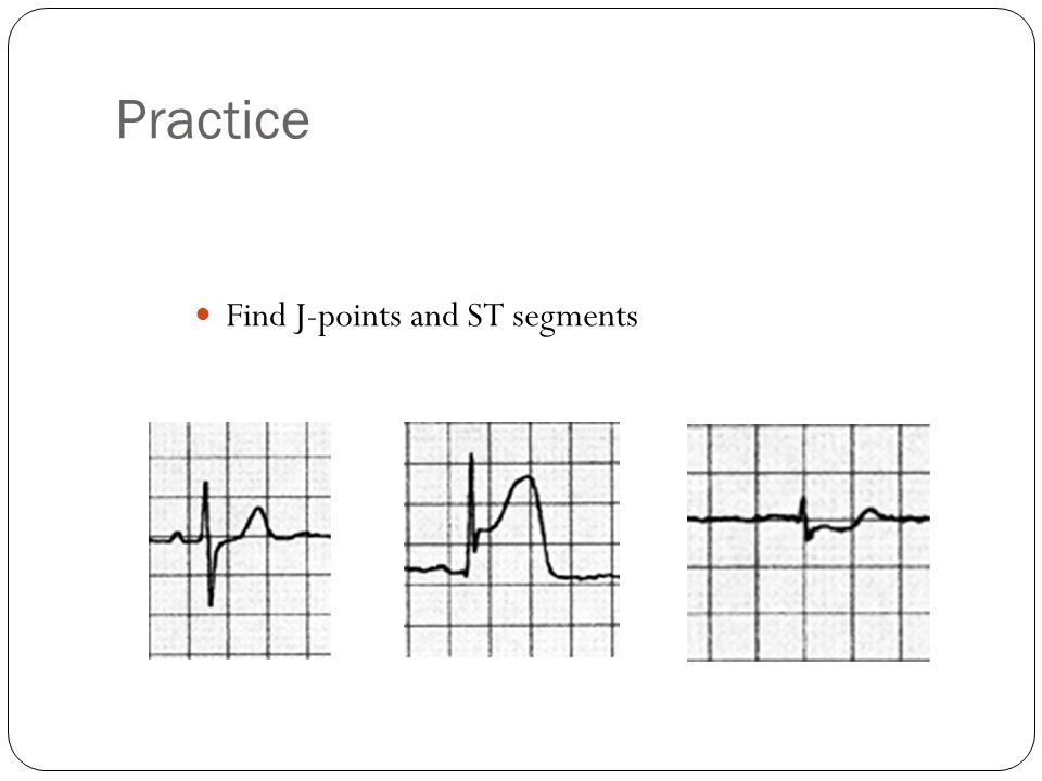 Practice Find J-points and ST segments
