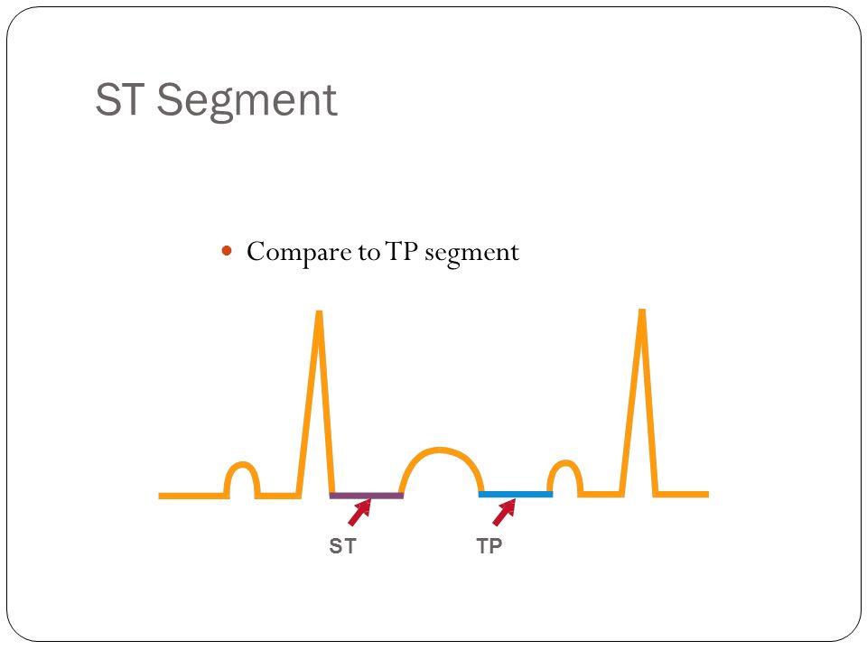 ST Segment Compare to TP segment ST TP