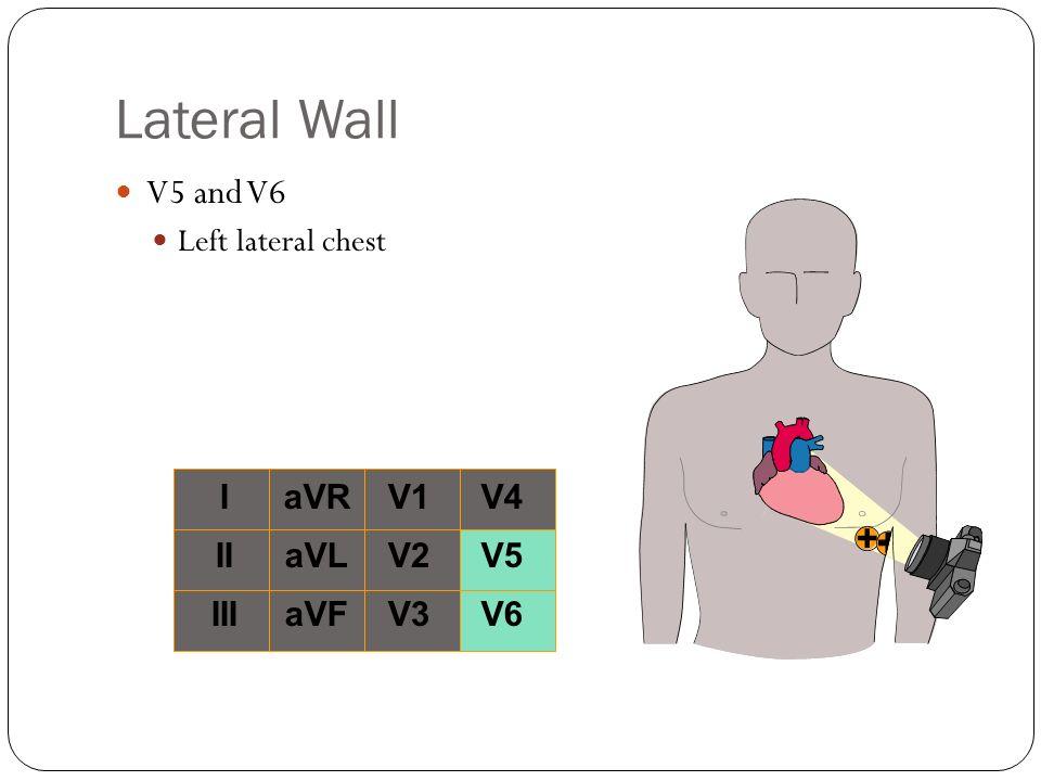 Lateral Wall V5 and V6 Left lateral chest I II III aVR aVL aVF V1 V2