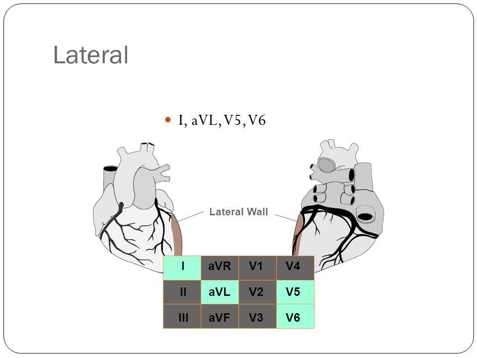 Lateral I, aVL, V5, V6 I II III aVR aVL aVF V1 V2 V3 V4 V5 V6