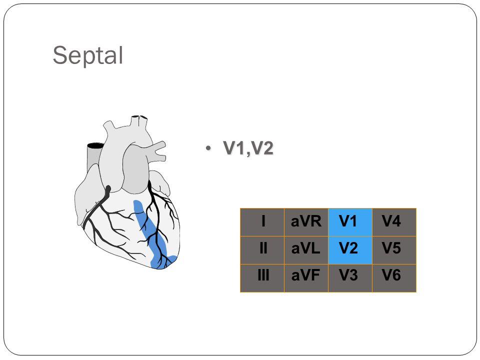 Septal V1,V2 I II III aVR aVL aVF V1 V2 V3 V4 V5 V6