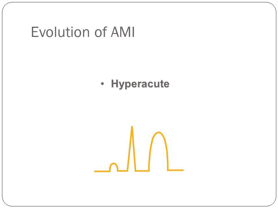 Evolution of AMI Hyperacute