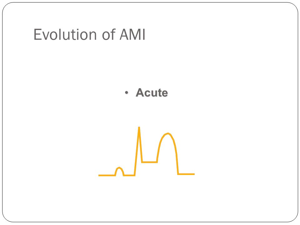 Evolution of AMI Acute. ST segment elevation is the next probable ECG change. ST segment elevation implies at least three things: