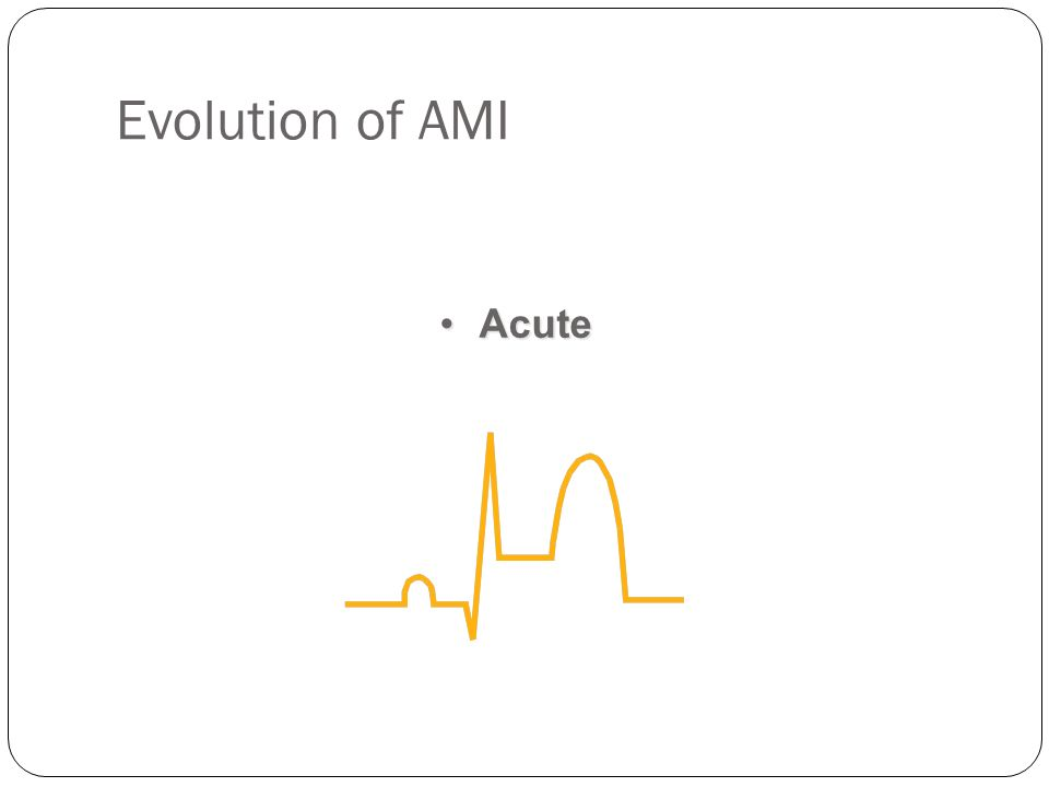 Evolution of AMI Acute. Note that the ST segment is elevated. We therefore assume that the infarct is acute (occurring right now).