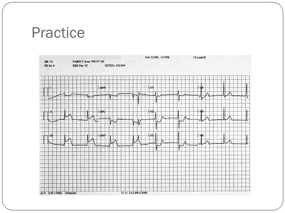 Practice Instructions: Review the 12-lead ECG.