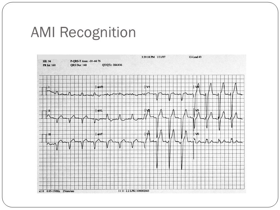 AMI Recognition Obvious ST elevation is seen in multiple leads. However, in this patient no infarct was present.