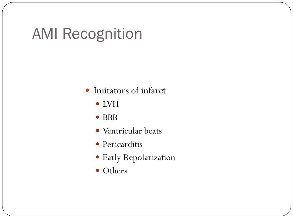 AMI Recognition Imitators of infarct LVH BBB Ventricular beats