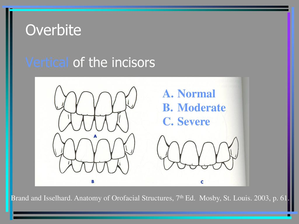 Beautiful Anatomy Of Orofacial Structures Ensign Physiology Of