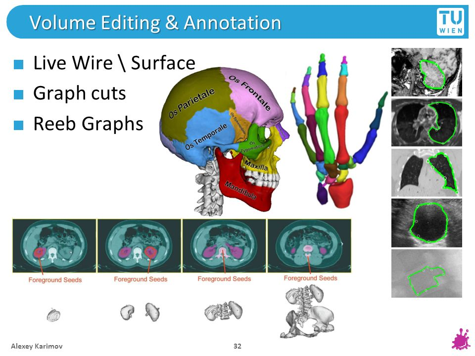 Volume Editing & Annotation