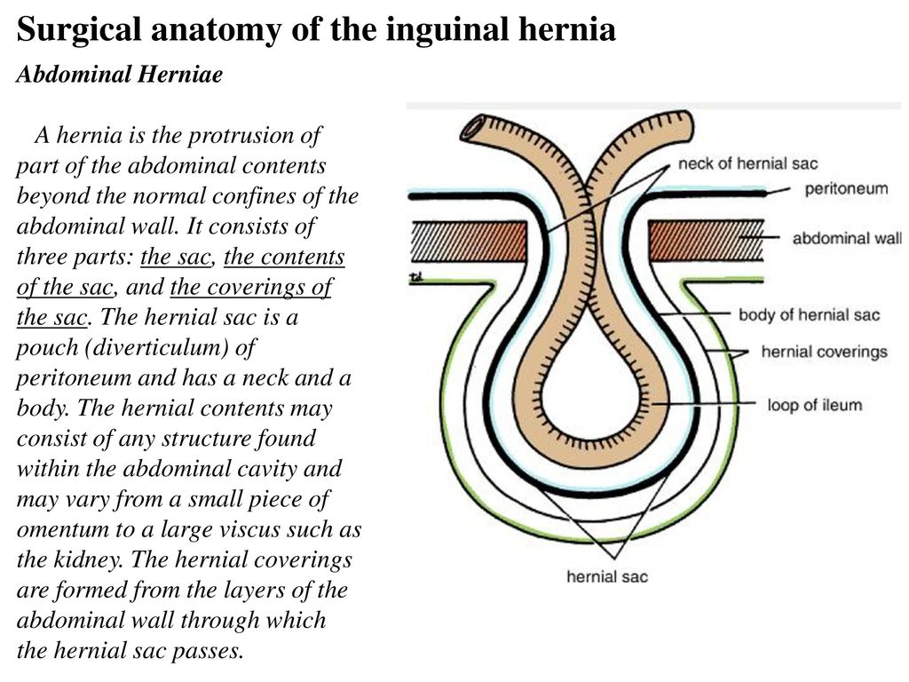 Ausgezeichnet Inguinal Hernia Anatomy And Physiology Galerie ...