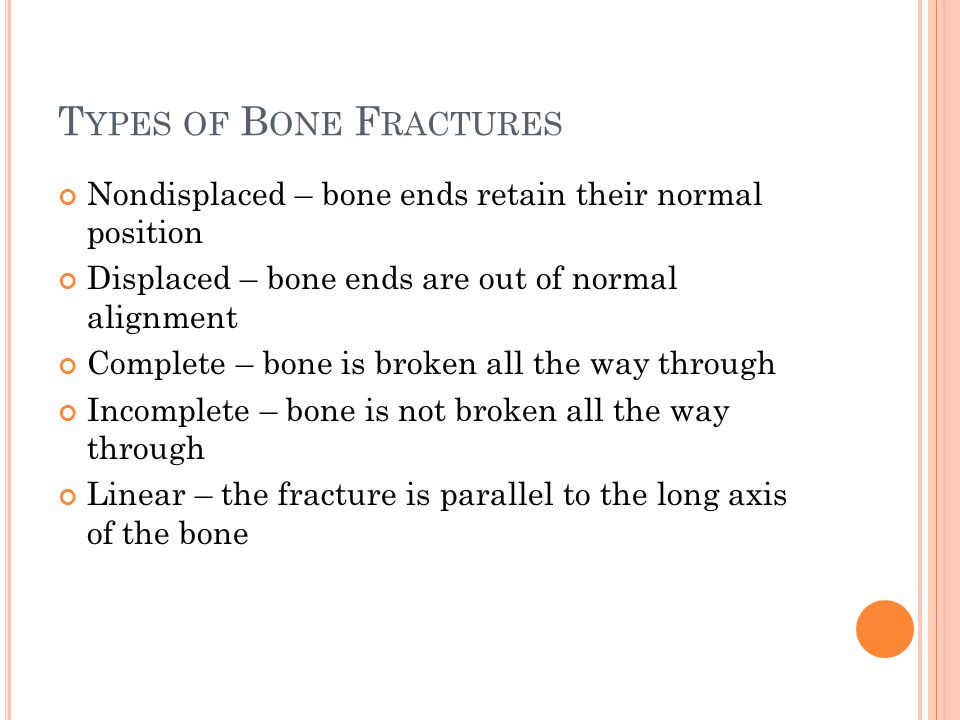 Types of Bone Fractures