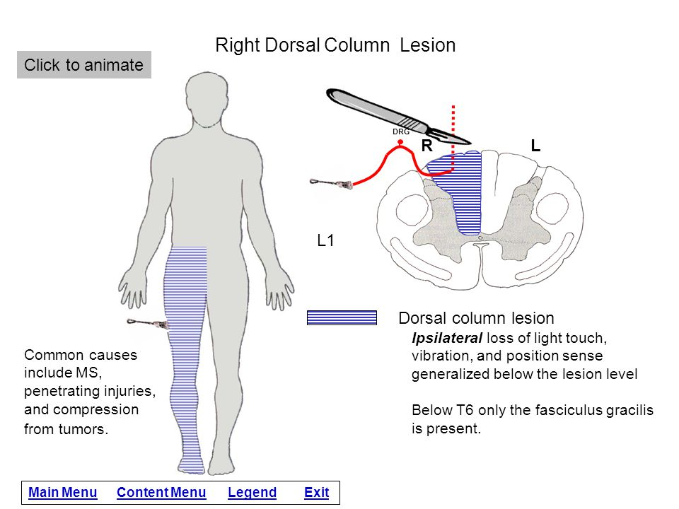 Right Dorsal Column Lesion