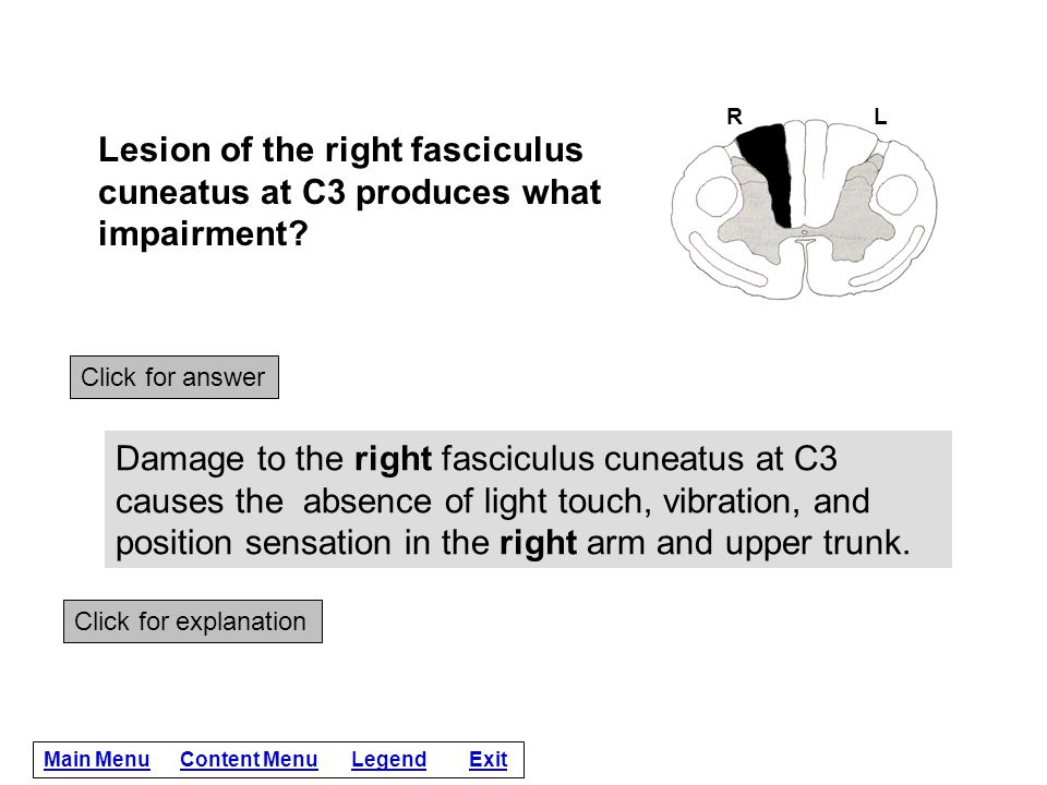R L. Lesion of the right fasciculus cuneatus at C3 produces what impairment Click for answer.