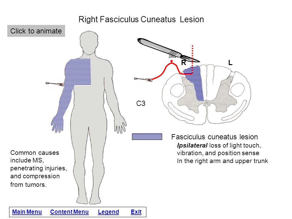 Right Fasciculus Cuneatus Lesion