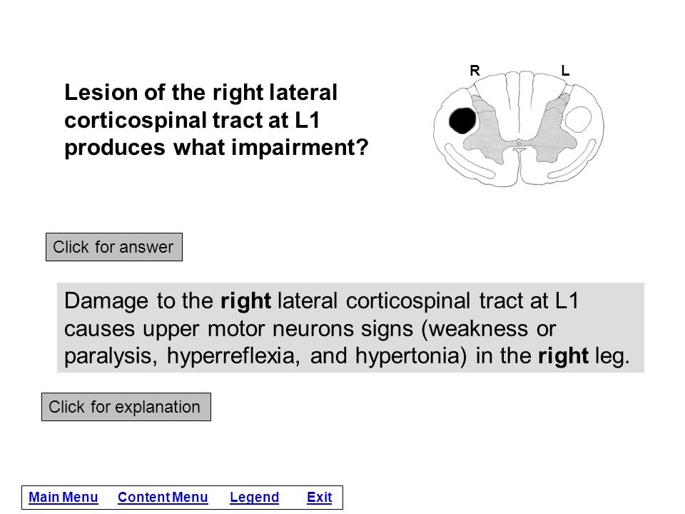 R L. Lesion of the right lateral corticospinal tract at L1 produces what impairment Click for answer.