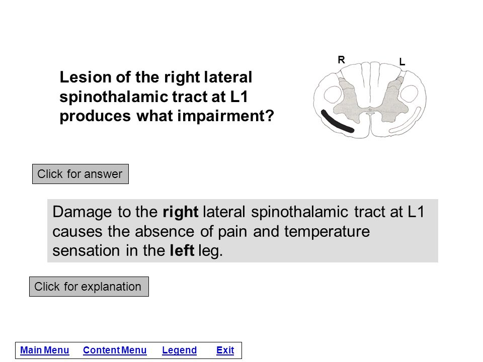 R L. Lesion of the right lateral spinothalamic tract at L1 produces what impairment Click for answer.
