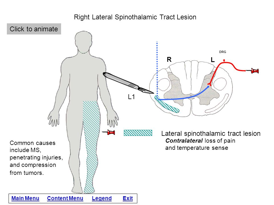 Right Lateral Spinothalamic Tract Lesion