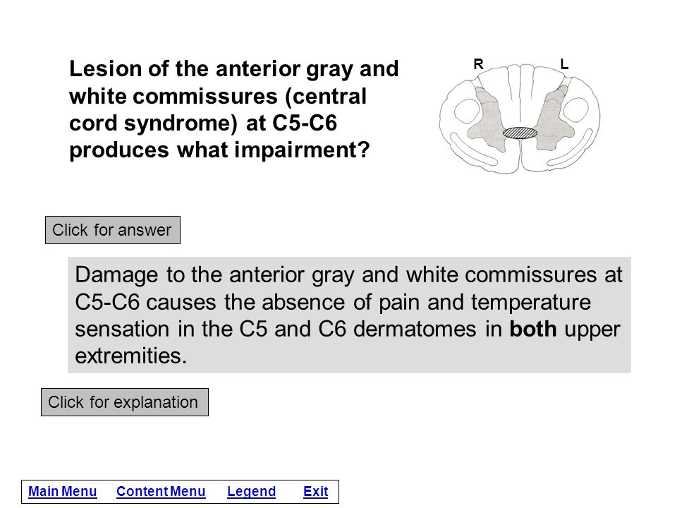 Lesion of the anterior gray and white commissures (central cord syndrome) at C5-C6 produces what impairment