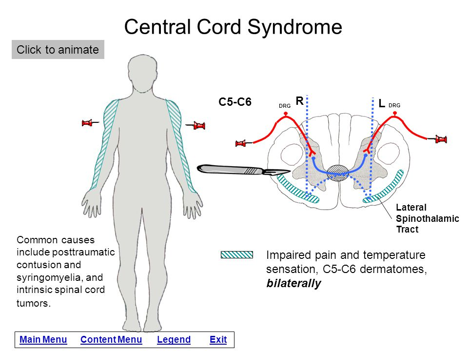 Central Cord Syndrome Click to animate C5-C6 R L