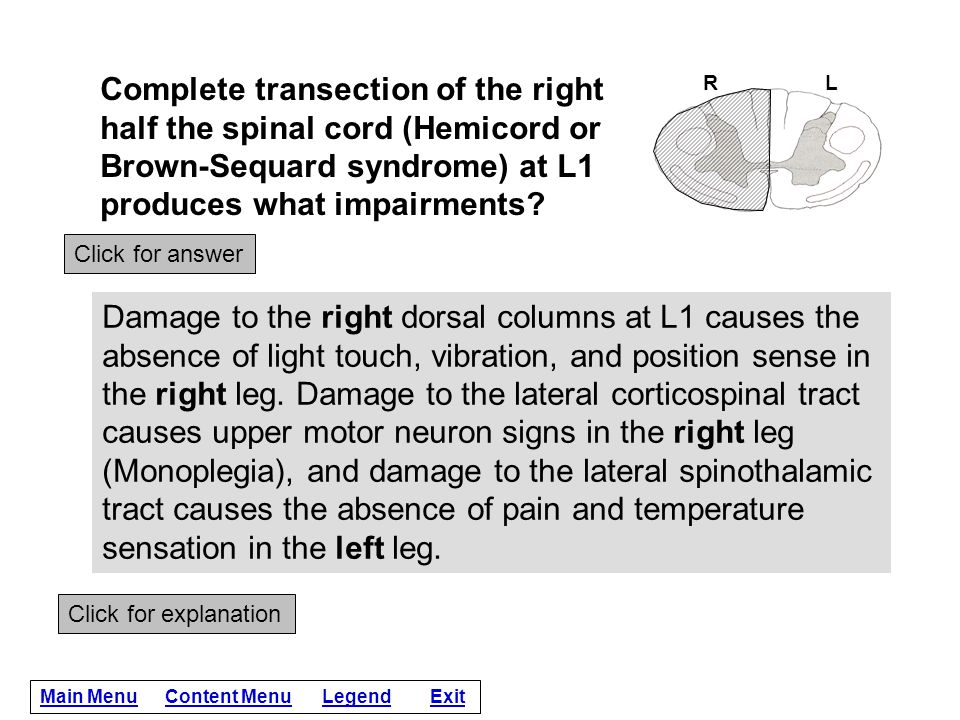 Complete transection of the right half the spinal cord (Hemicord or Brown-Sequard syndrome) at L1 produces what impairments