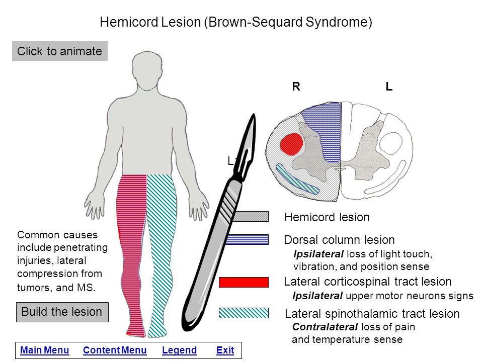 Hemicord Lesion (Brown-Sequard Syndrome)