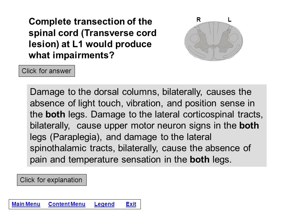 Complete transection of the spinal cord (Transverse cord lesion) at L1 would produce what impairments