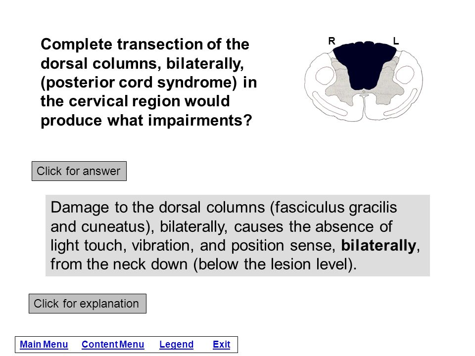 Complete transection of the dorsal columns, bilaterally, (posterior cord syndrome) in the cervical region would produce what impairments