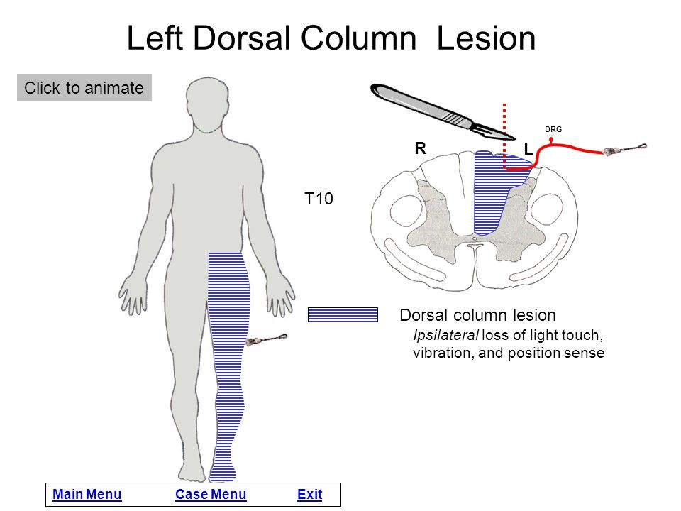 Left Dorsal Column Lesion