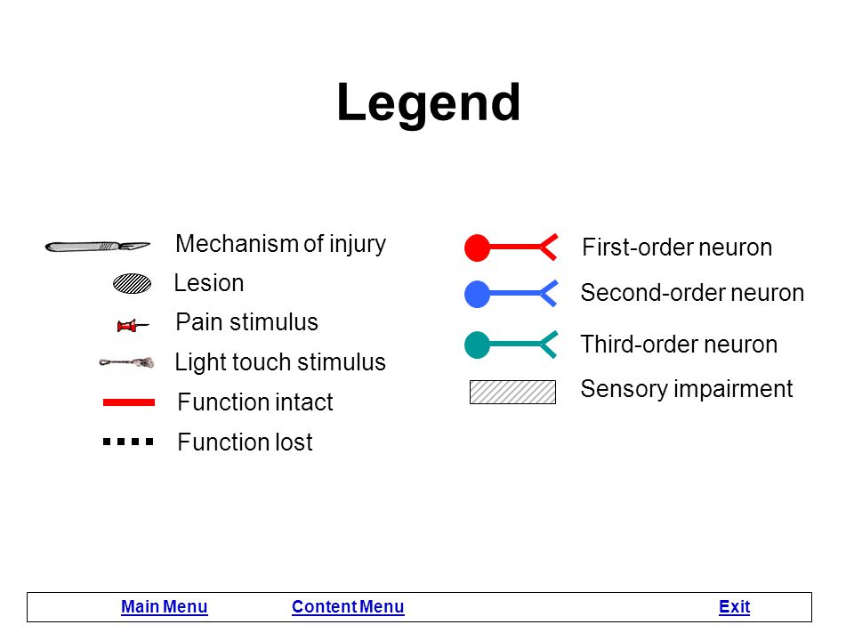 Legend Mechanism of injury First-order neuron Lesion