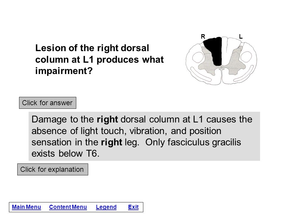 Lesion of the right dorsal column at L1 produces what impairment