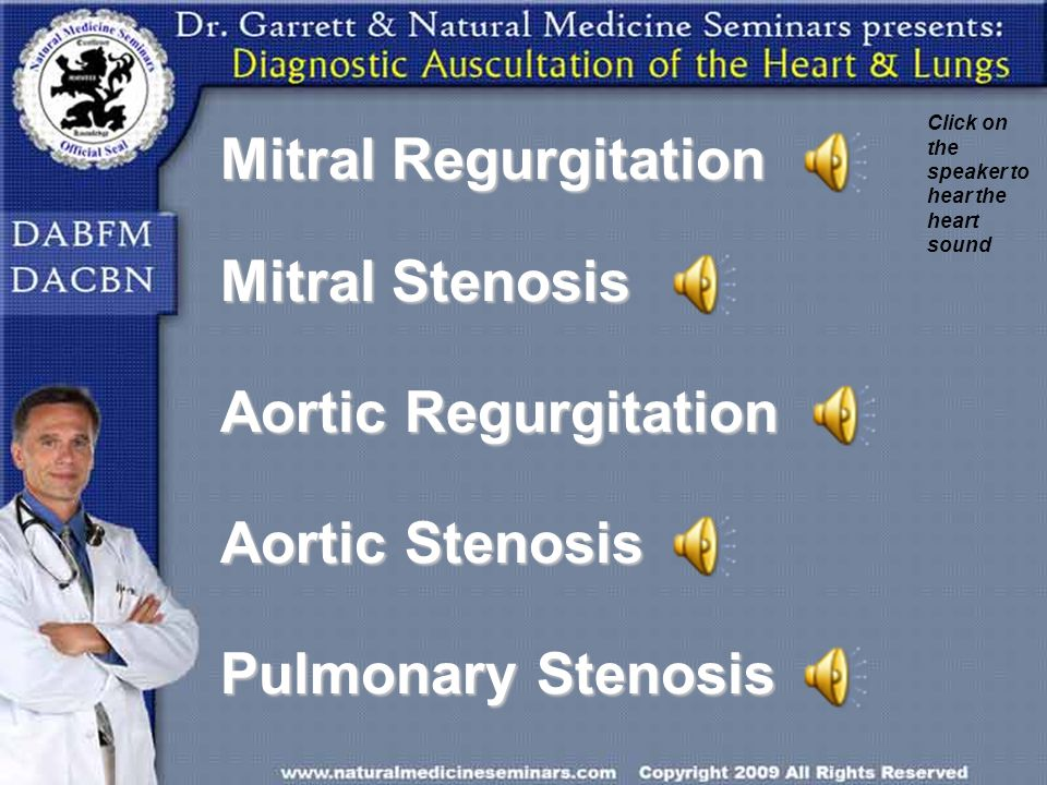 Mitral Regurgitation Mitral Stenosis Aortic Regurgitation