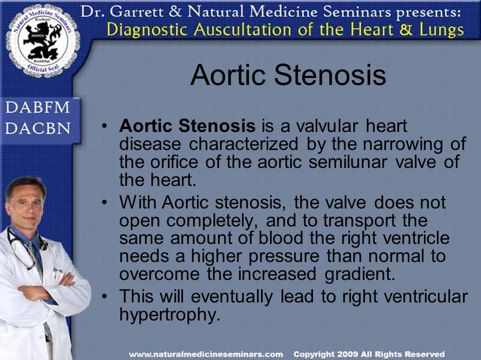 Aortic Stenosis Aortic Stenosis is a valvular heart disease characterized by the narrowing of the orifice of the aortic semilunar valve of the heart.