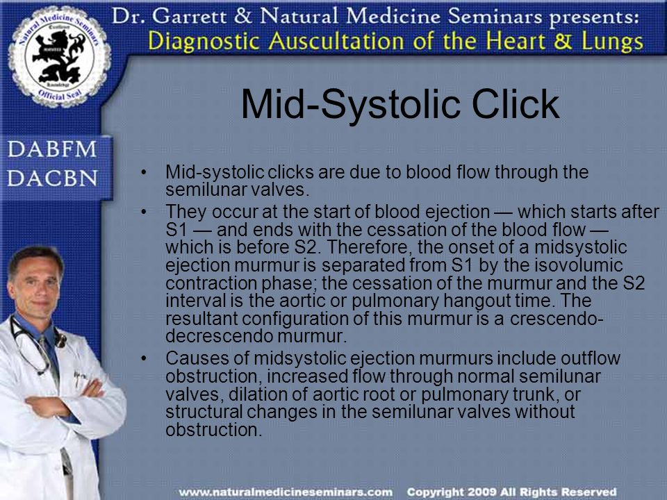 Mid-Systolic Click Mid-systolic clicks are due to blood flow through the semilunar valves.