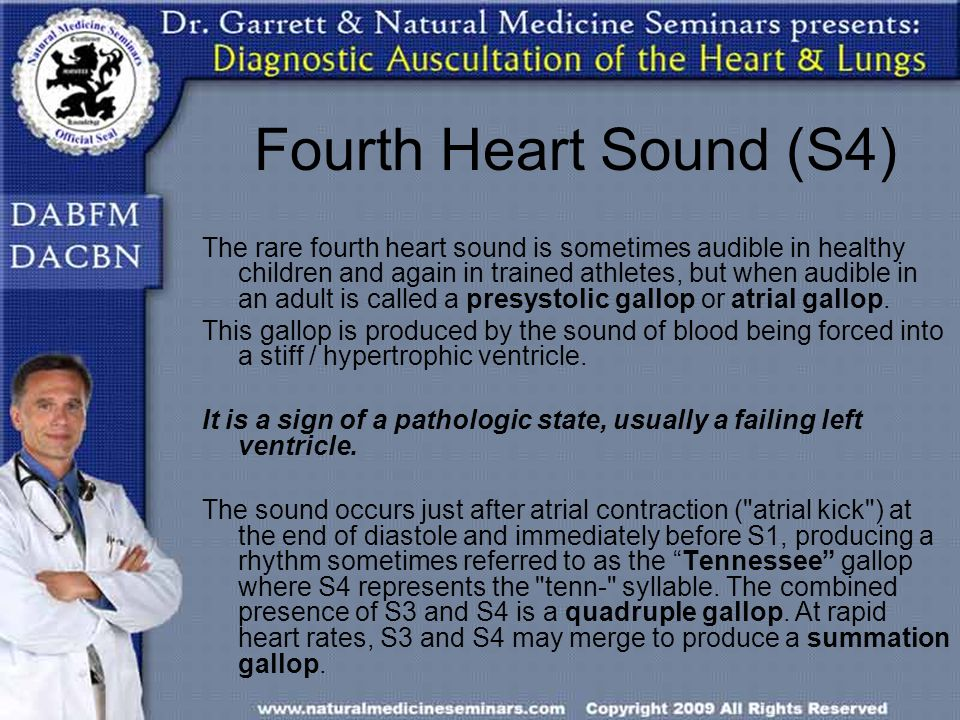 Fourth Heart Sound (S4)