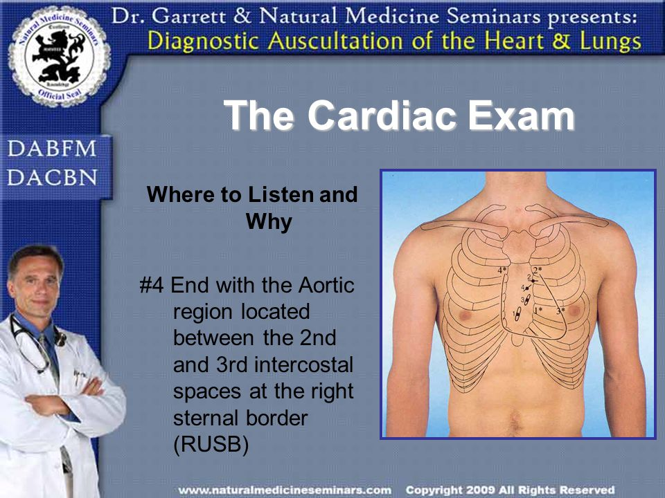 The Cardiac Exam Where to Listen and Why