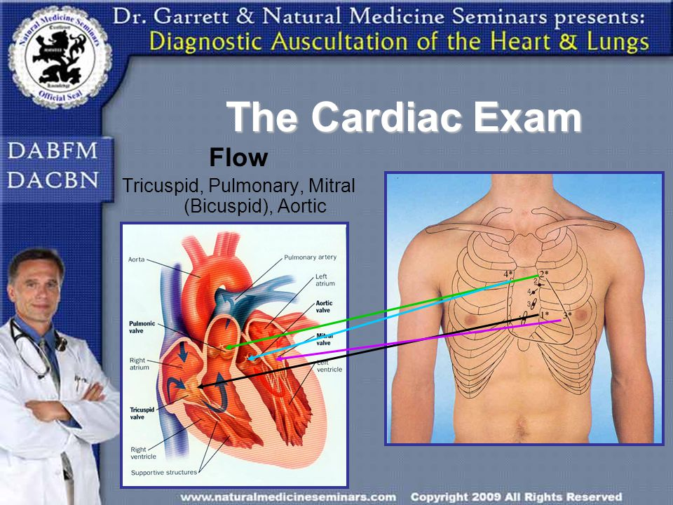 Flow Tricuspid, Pulmonary, Mitral (Bicuspid), Aortic