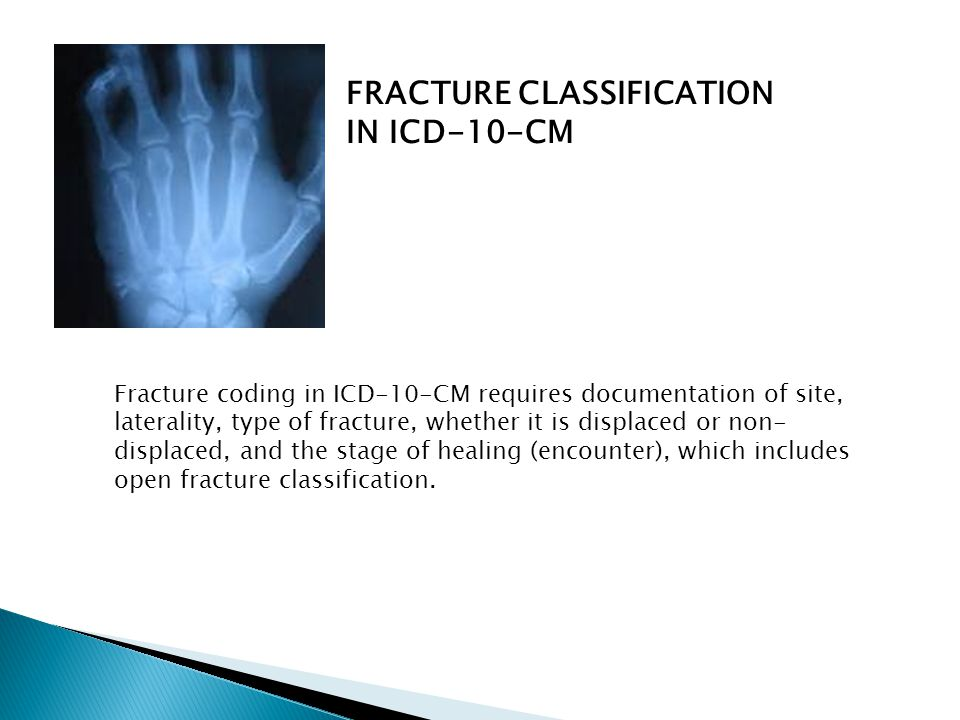 FRACTURE CLASSIFICATION IN ICD-10-CM