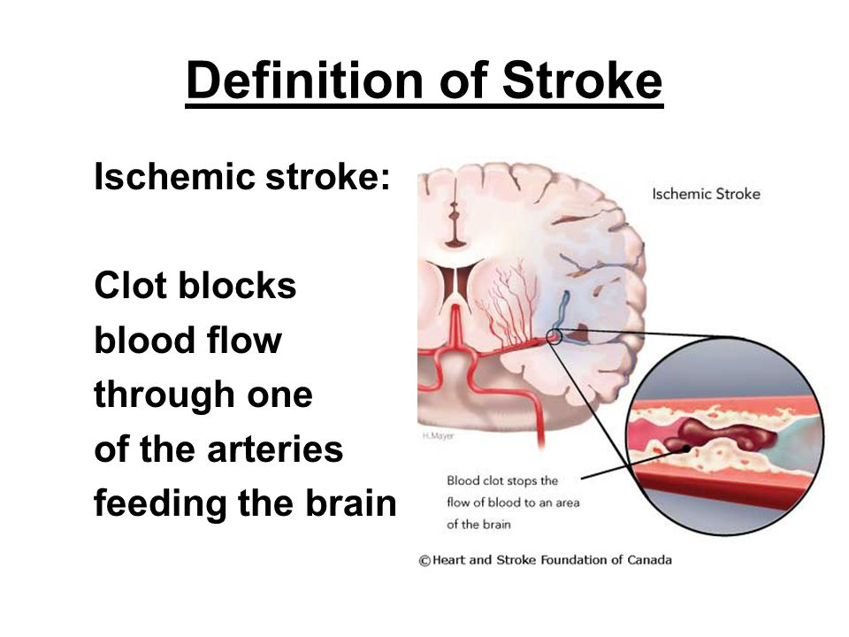 Definition of Stroke Ischemic stroke: Clot blocks blood flow