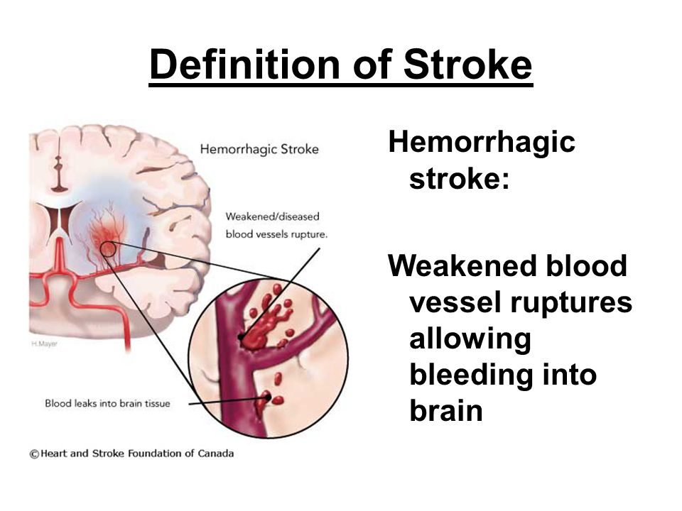 Definition of Stroke Hemorrhagic stroke: