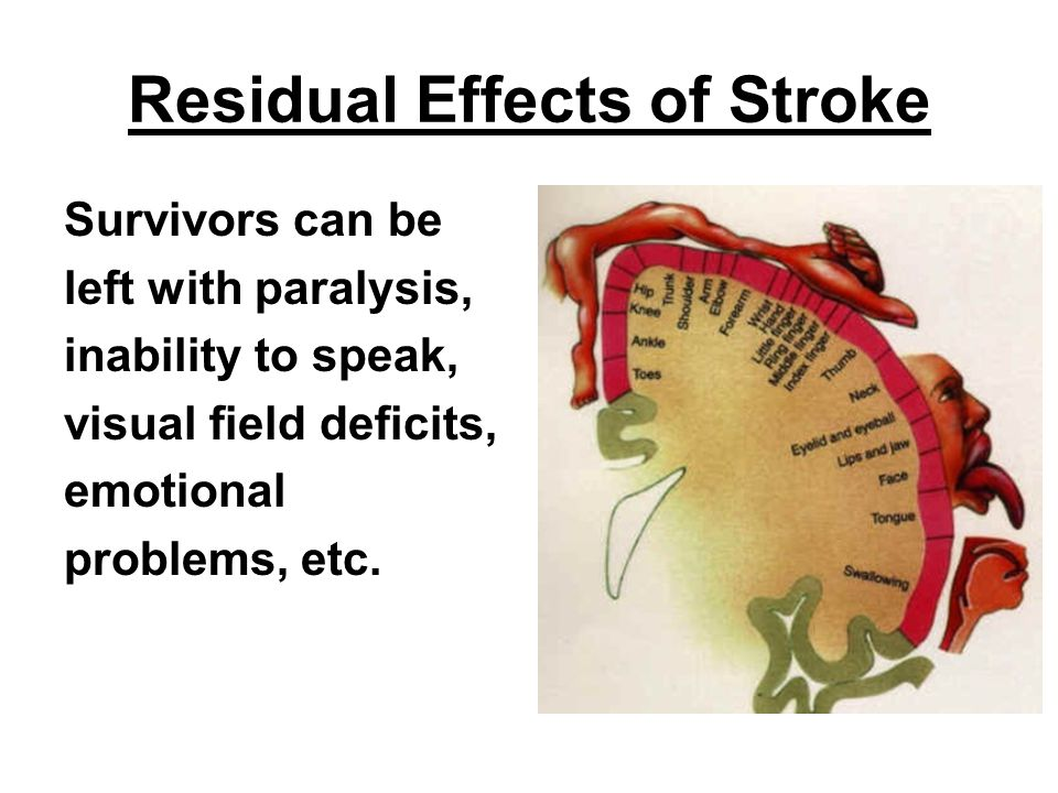 Residual Effects of Stroke
